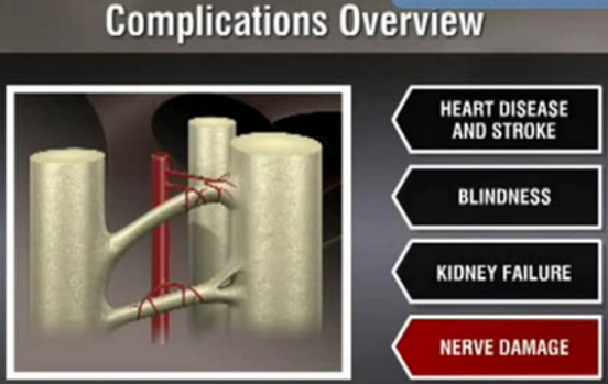 diabetes complication overview