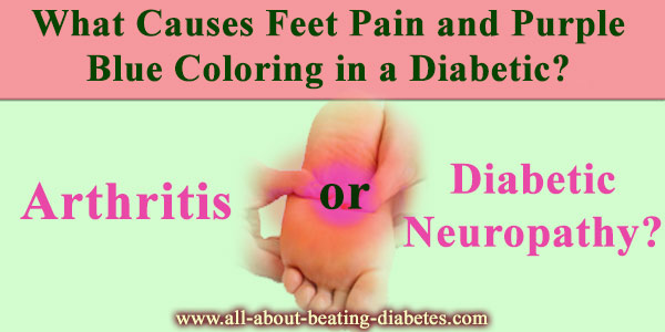 What Causes Feet Pain and Purple Blue Coloring in a Diabetic