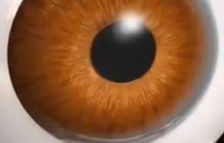 cataract diabetes  type 2